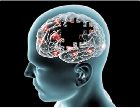 Fondazione Roma e Biomedical University Foundation per la lotta all'Alzheimer